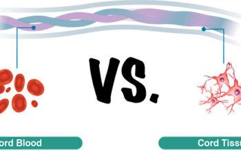 cord-blood-versus-cord-tissue